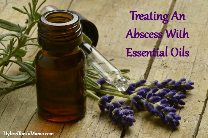 An abscess is a painful condition to deal with. Sometimes poultices & compresses just don't work. Learn how I treated an abscess with essential oils. From HybridRastaMama.com