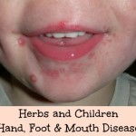 Herbs and Children – Hand, Foot, and Mouth Disease (Plus An Herbal Mouthwash Recipe)