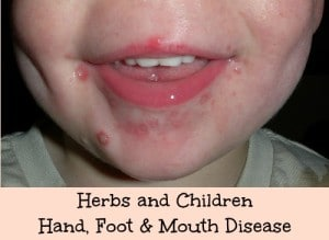 Hand, Foot, and Mouth Disease: HybridRastaMama.com
