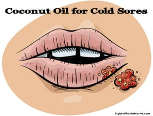 Coconut Oil for Cold Sores: HybridRastaMama.com