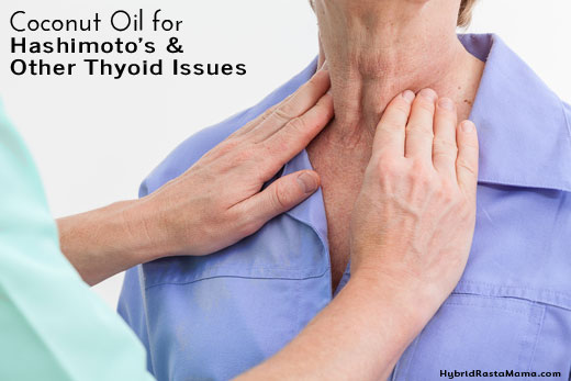 Thyroid health is vital to the well-being and longevity, especially in women. Hashimoto's in particular is running rampant. Learn how coconut oil can help with Hashimoto's disease and other thyroid issues in this post from HybridRastaMama.com.