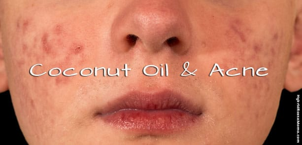 Coconut Oil For Acne Prevention and Treatment
