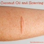 Coconut Oil and Scarring (Plus a Few Other Natural Remedies)