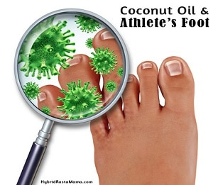 Coconut Oil and Athlete's Foot: HybridRastaMama.com