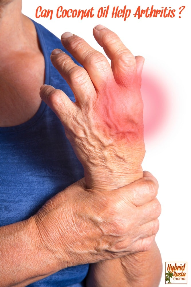 Arthritis is an all to common ailment that makes living life difficult. Learn how coconut oil can help ease the pain and discomfort of arthritis from HybridRastaMama.com.