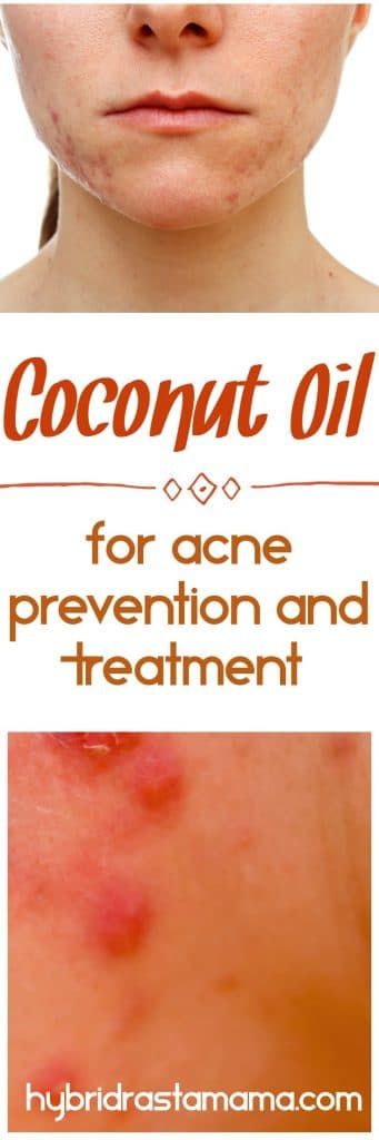 Did you know that you can use coconut oil for acne prevention and treatment? Learn how this powerful oil will kiss blemishes goodbye for good from HybridRastaMama.com.