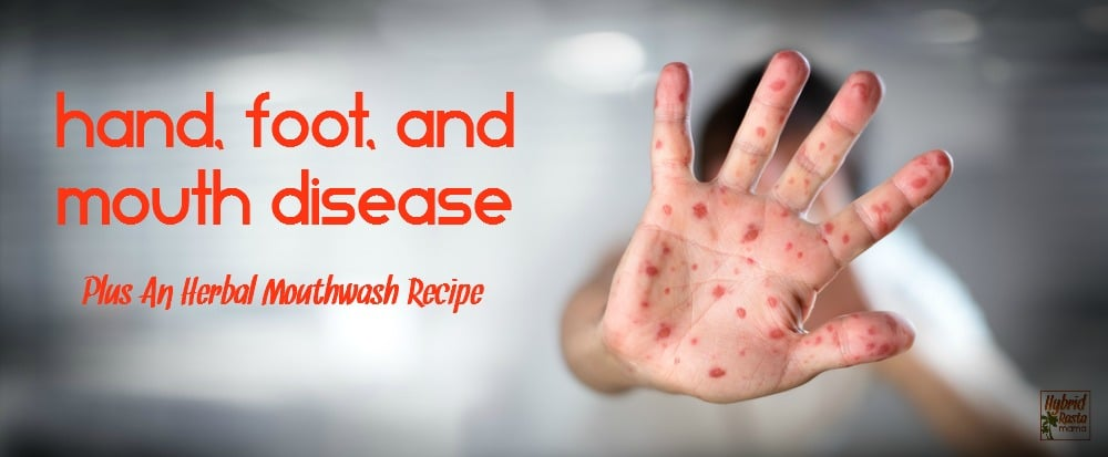 Grab this detailed information on treating hand, foot, and mouth disease naturally plus an herbal mouthwash recipe that is safe for all ages. From HybridRastaMama.com