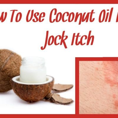 How To Use Coconut Oil For Jock Itch